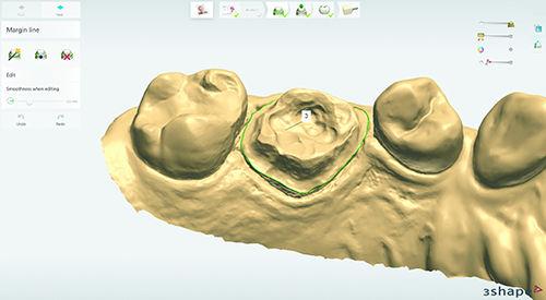 design software / dental