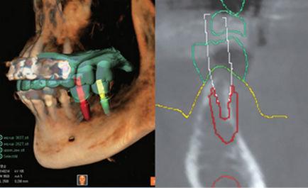 planning software / for dental implant simulation / CAM / for dental prosthesis design