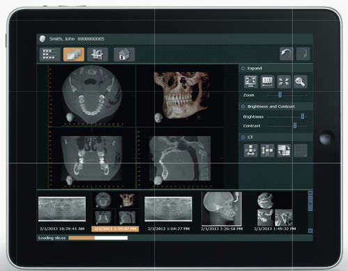 diagnostic software / visualization / data management / for dental imaging