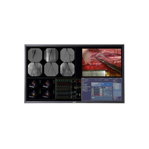 surgical display / 4K / LCD / LED-backlit