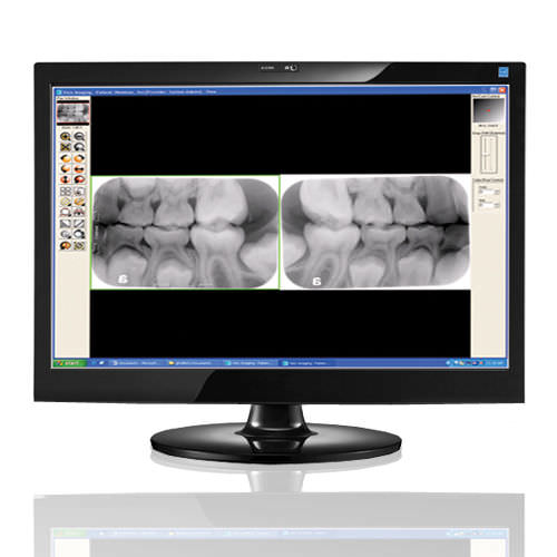 Dental imaging software Visix® Air Techniques