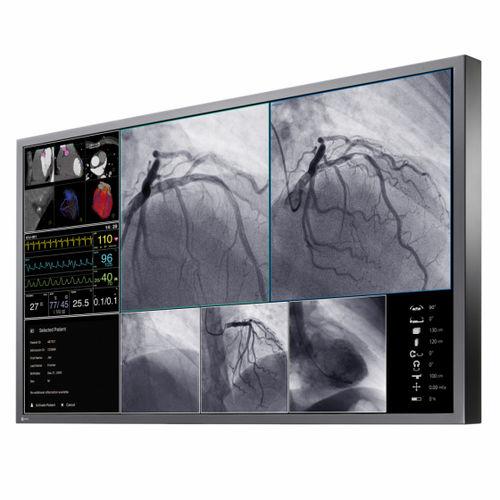 operating room display / medical imaging / 4K / LCD