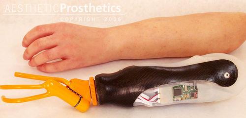 myo-electric hand prosthesis / hook clamp / adult