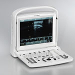 portable ultrasound system / for abdominal and pelvic ultrasound imaging / built-in console
