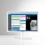 diagnostic display / LCD