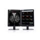 diagnostic display / mammography / radiology / 3D