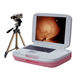 video colposcope / transportable
