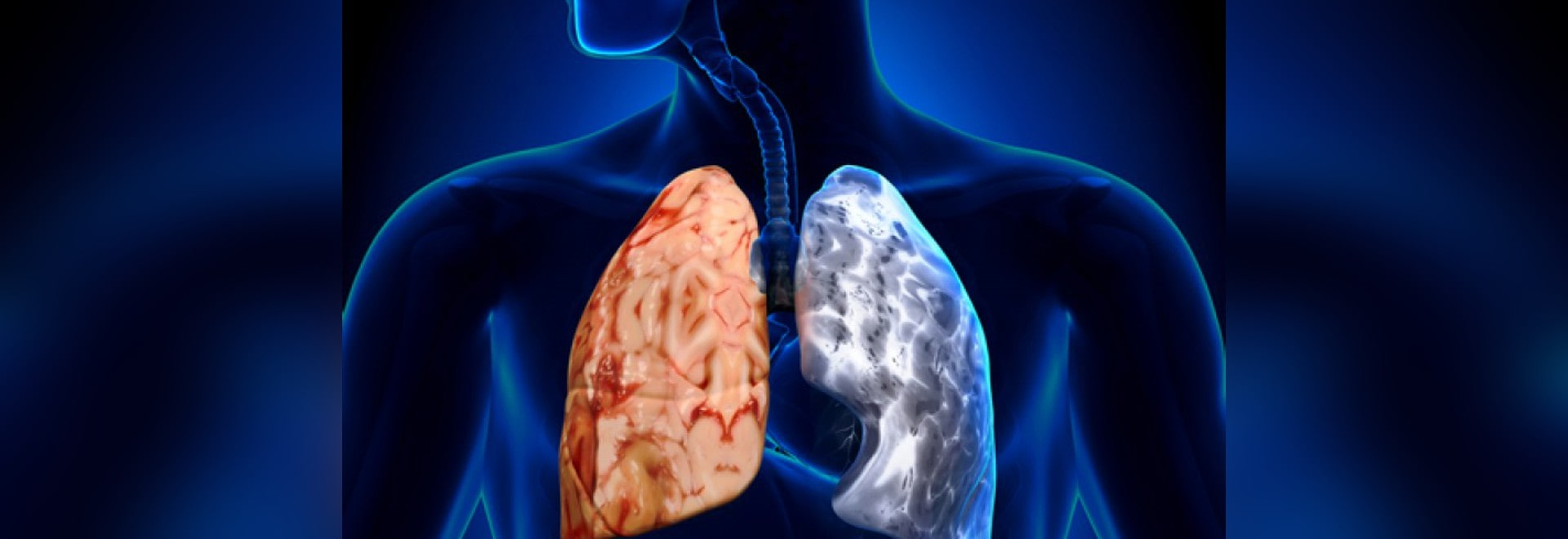 Care for COPD patients has improved but is still not good enough