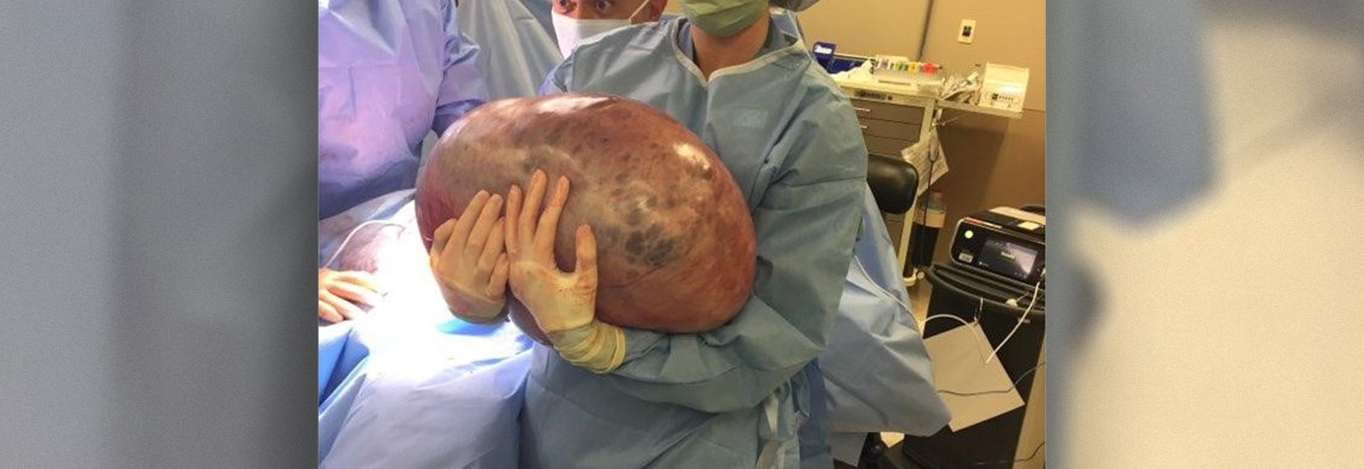 Doctors removed a 50-pound ovarian tumor from a woman in Alabama.