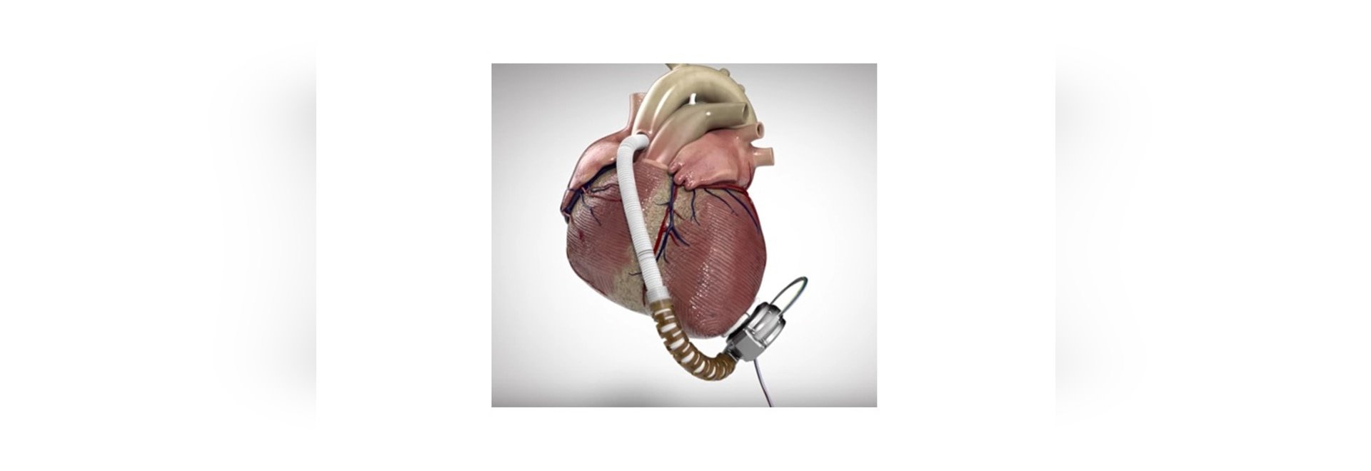 heartware has a really serious lvad battery recall united states