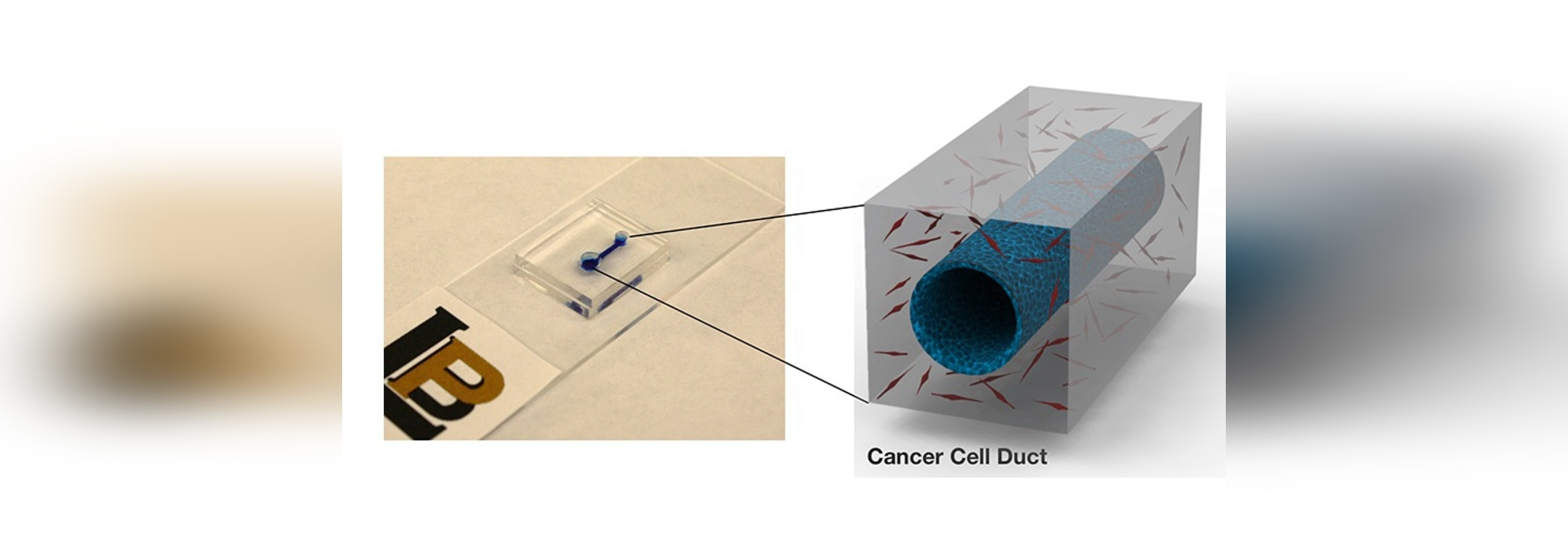 Microfluidic Device to Study How Pancreatic Cancer Develops Clots