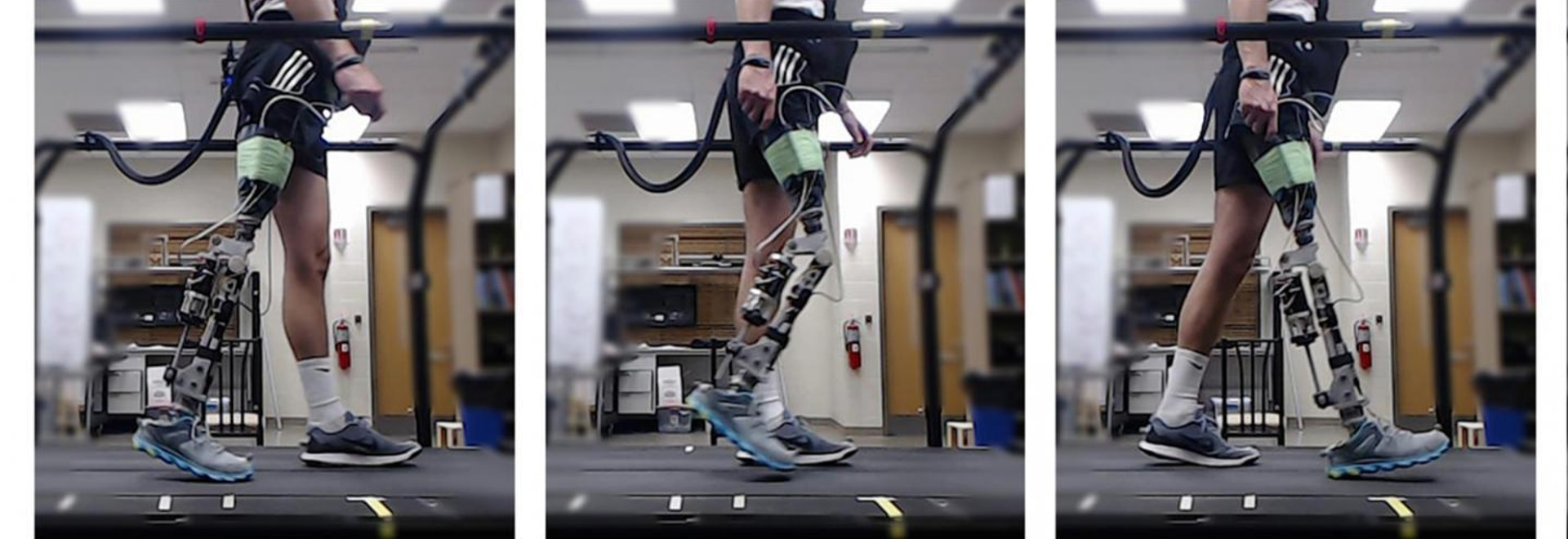 Reinforcement Learning System Automatically Trains Prosthetic Legs