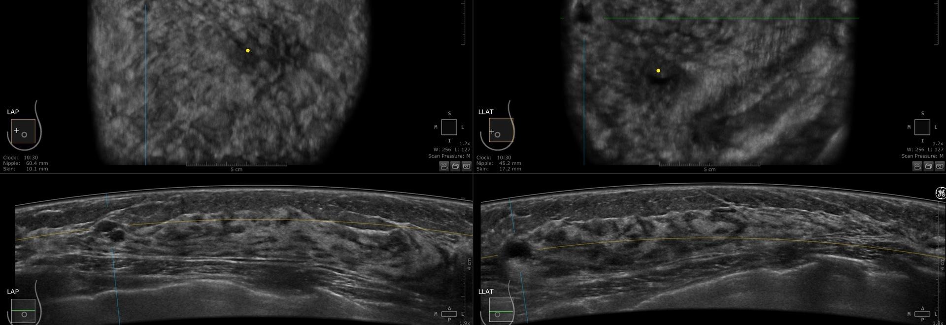 Researcher Investigates Eliminating Radiation for HER2-Positive Breast Cancer