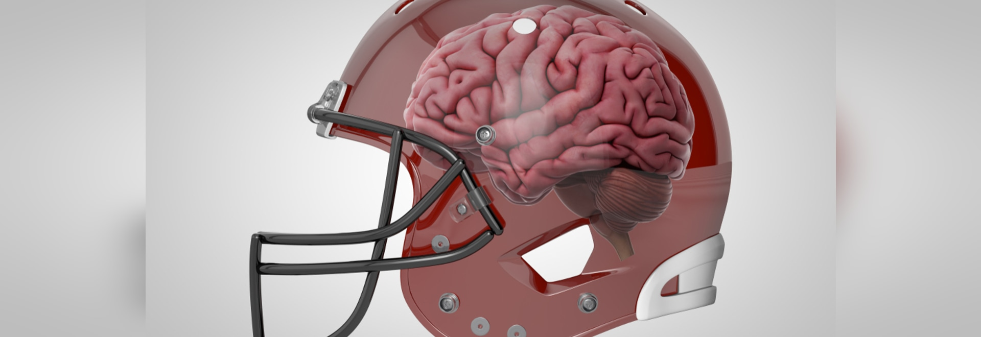 Researchers Identify Risk of CTE for NFL Players