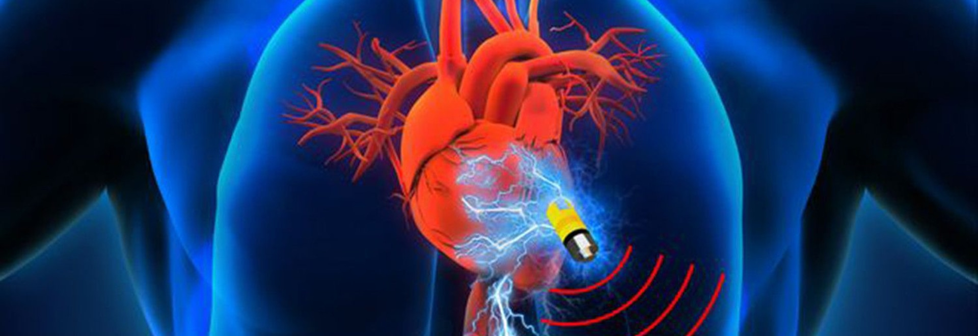 Batteries Not Included: New Implant Tech Uses Energy From Human Body