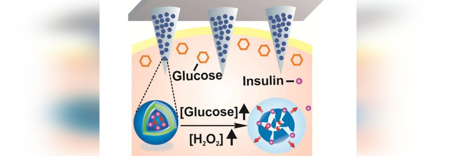 Tiny, painless microneedles on a patch can deliver insulin in response to rising glucose levels (credit: American Chemical Society)