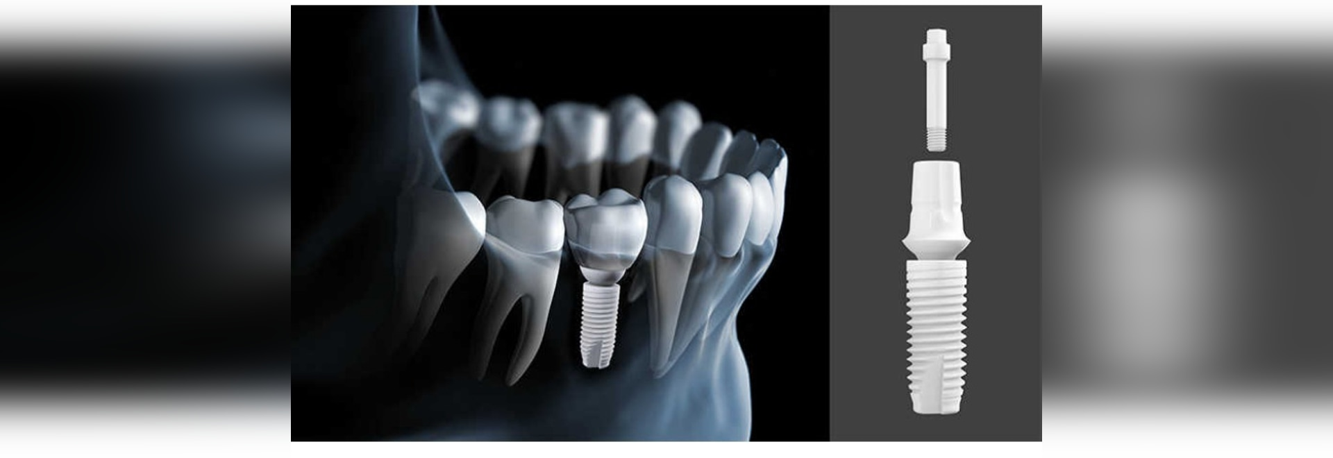 Z-SYSTEM's new two-piece ceramic implant features a ceramic connection screw, making it the first two-piece, screw-retained dental implant to be completely metal- and plastic-free. (Image: Z-SYSTEMS)