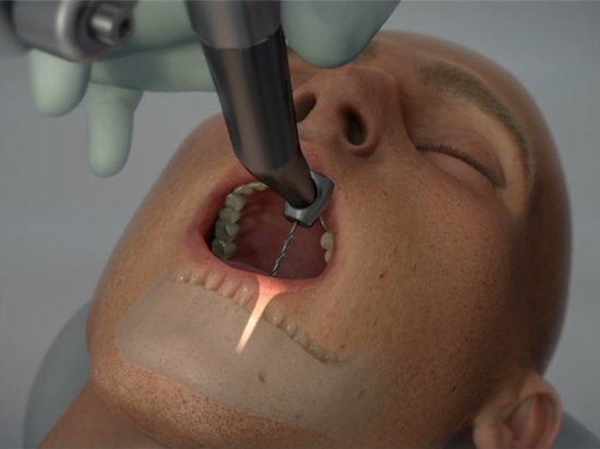 Yomi, The First Robotic Dental Surgery System Now Cleared by FDA