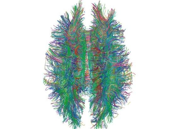 MRI Scans Can Help Spot HIV in Brain