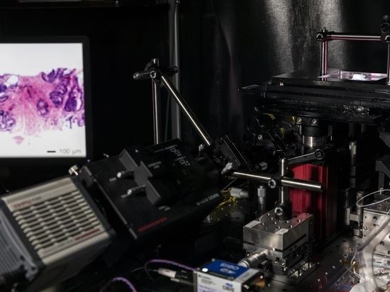 This microscope could spare women repeat breast cancer surgeries