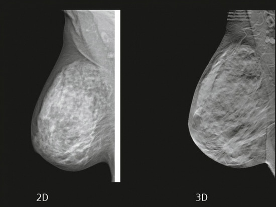 Mammography's 3D Future