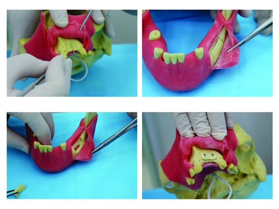 Pre Molar Model with Gum