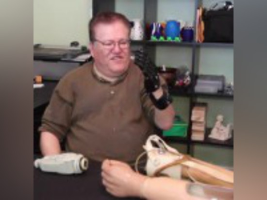 'CYBORG BEAST' PROSTHETIC HAND COSTS ONLY $50