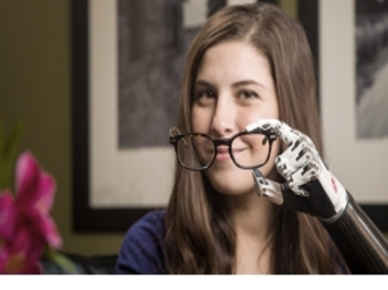 Thumbs up for a New, True-To-Life Prosthetic Hand