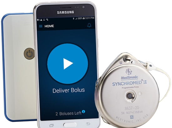 Medtronic's myPTM Smartphone Controller for SynchroMed II Pain Drug Pump Approved by FDA