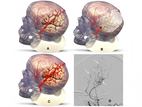 In the EDAS (encephaloduroarteriosynangiosis) operation, surgeons reroute a scalp artery and place it near the surface of the brain in need of additional blood flow (Panel A). They put the bone fla...