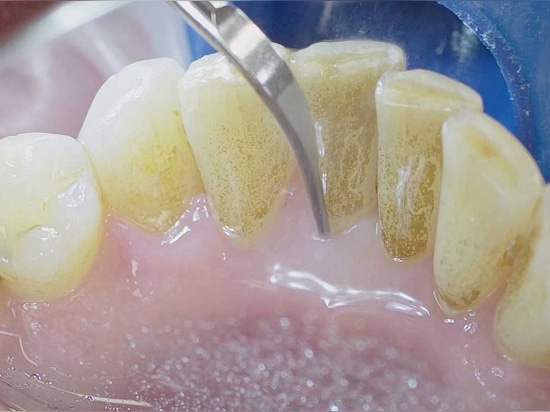 Implants should only be inserted when periodontal conditions are stable