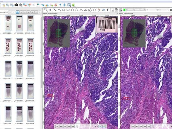New Whole Slide Imaging Scanner Series