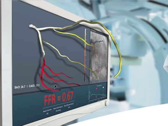 FFRangio Uses X-Rays to Measure Fractional Flow Reserve, Now Cleared in U.S.