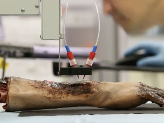 Printing Skin Cells on Burn Wounds