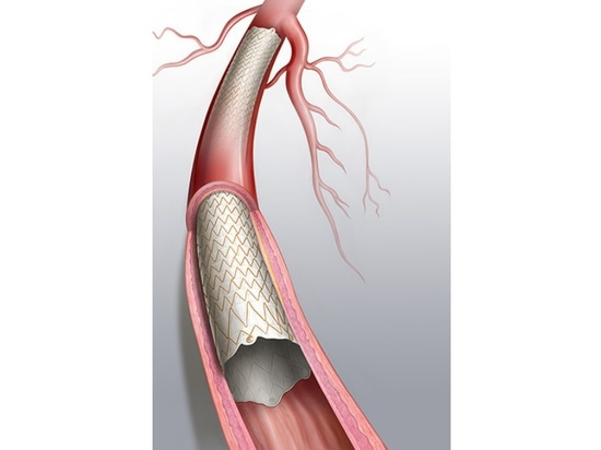 FDA premarket approval of the Covera covered stent for end stage renal disease patients on haemodialysis