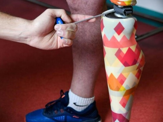 'Ugly' Prosthetics Get French Design Treatment