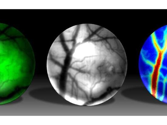 Mini Microscope is New GoPro for Studies of Brain Disease in Mice