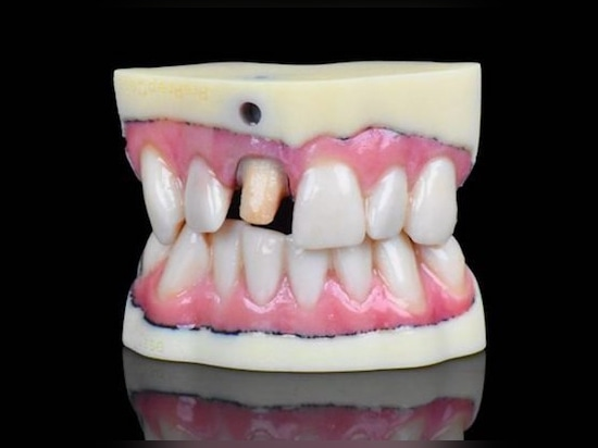 """IDS. """"Stratasys Set to Change the Game"""" With New 3D Dental Printer"""