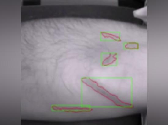 VEEBOT'S ROBOT TO REVOLUTIONIZE BLOOD DRAWS