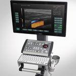 プラットフォーム上・コンパクト超音波システム / 多目的超音波画像診断用 / 白黒 / ドップラーカラー