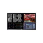 手術モニター / 4K解像度 / 液晶ディスプレー / LEDバックライト