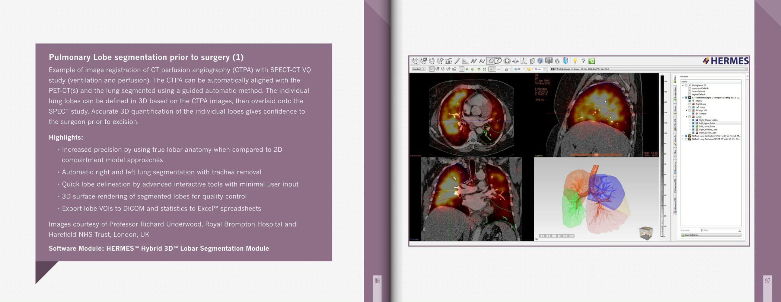 Pulmonary Lobe segmentation prior to surgery - Hermes Medical ...