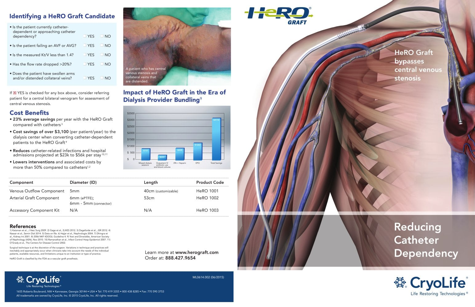 HeRO Graft bypasses central venous stenosis - Cryolife - PDF ...