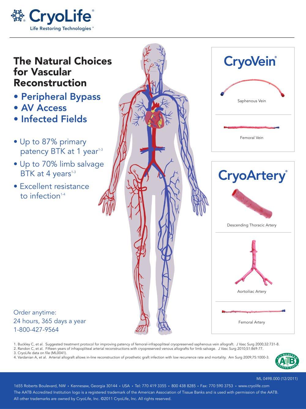 Erfreut Aortobifemoral Bypass Anatomie Ideen Anatomie Ideen