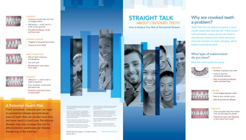 Invisalign Straight Talk Brochure