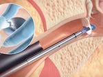 tubo de timpanostomia