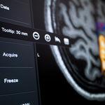 software de neuronavegação / para neurocirurgia