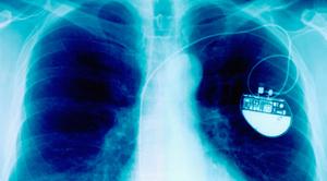 cardiac-stimulator