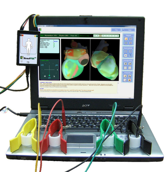 Cardiac mapping system - HeartVUE - Medical Computer Systems - ECG