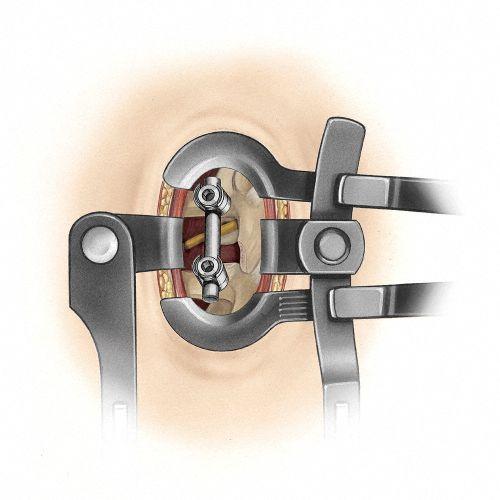 Lumbar retractor / for minimally invasive surgery